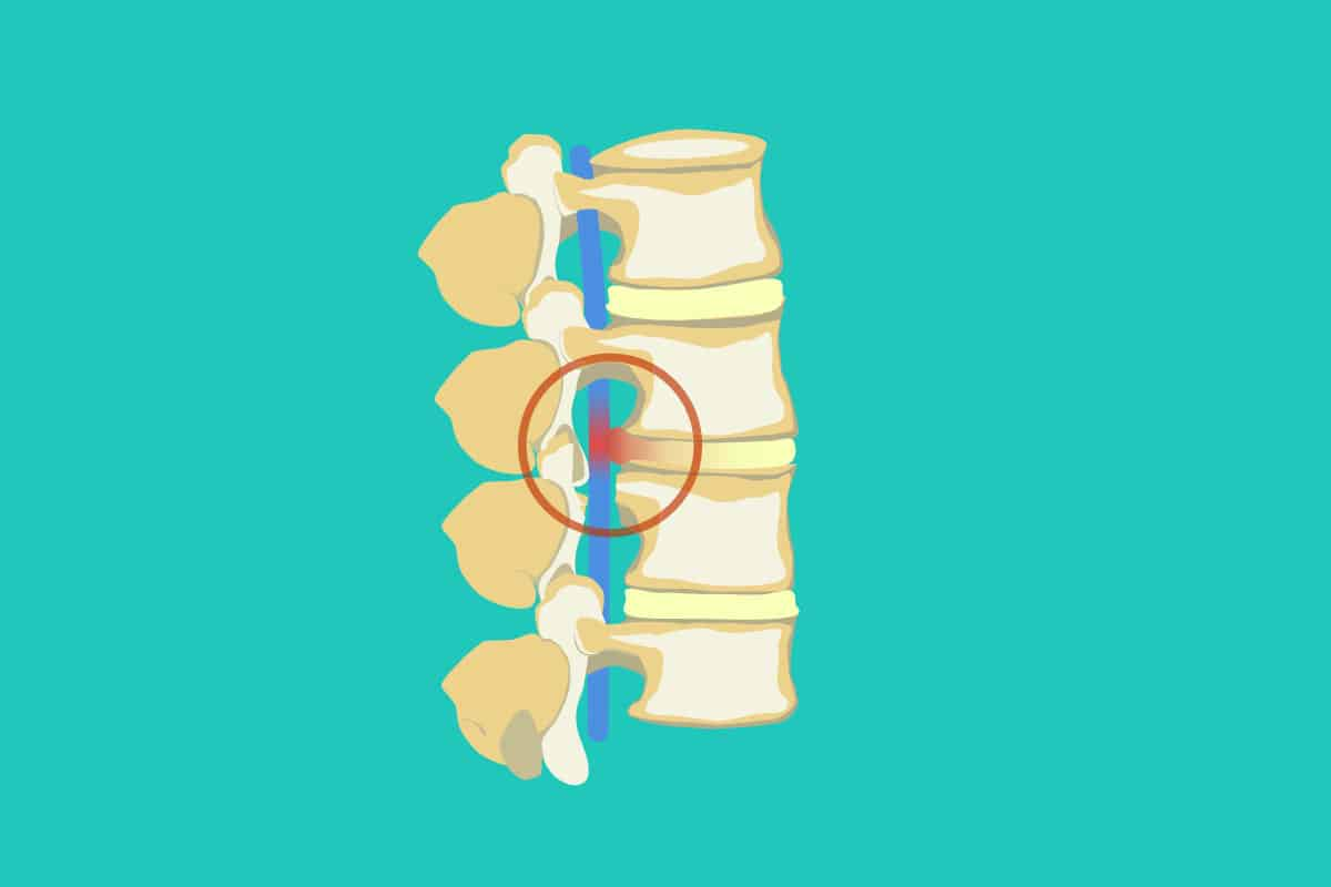 Joint Injections Illustration
